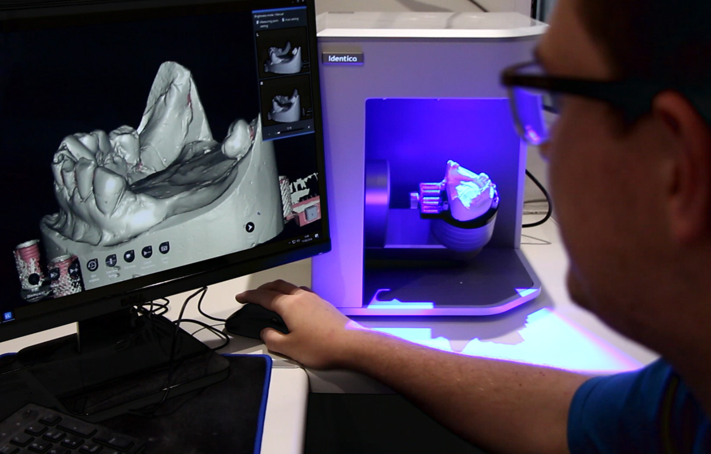 Medit scanners – win the dental workflow race…
