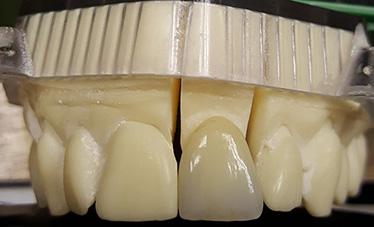 ZIRCONIA … making it work in dentistry