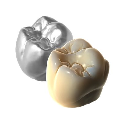 Exocad TruSmile module showing a metallic tooth and an aesthetic ceramic tooth